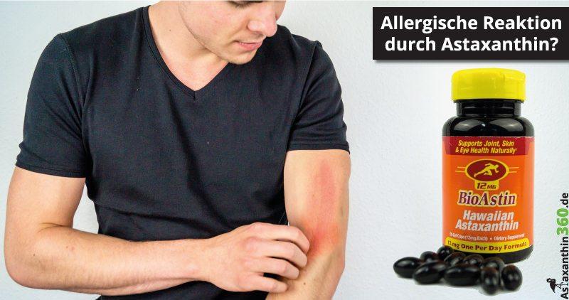 Allergische Reaktionen und Astaxanthin - der Zusammenhang.