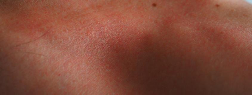 Sonnenbrand - gerötete Haut